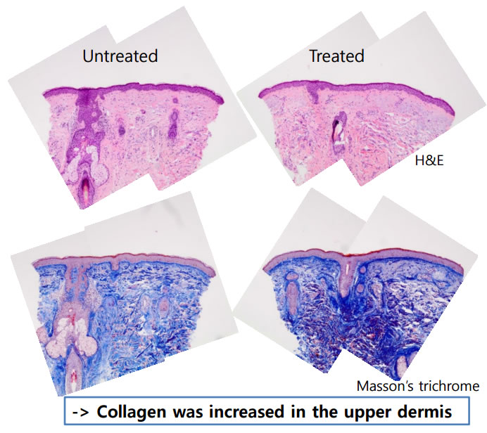 histology-results-following-jetpeel-treatment-img2